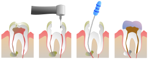 Endodontie2